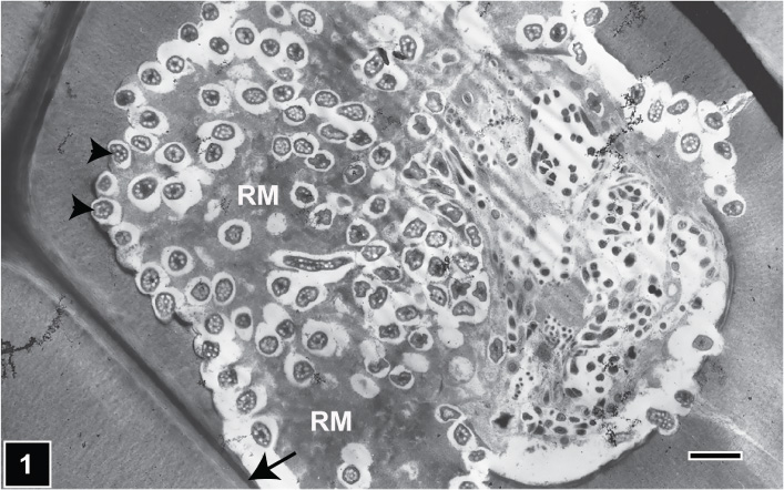 Relationship of wood cell wall ultrastructure to bacterial