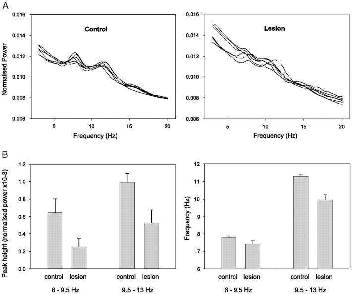 The Effects of Complete Vestibular Deafferentation on
